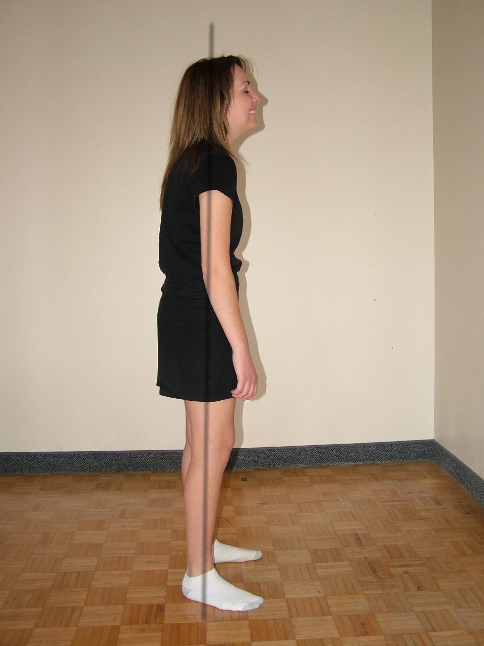 Kyphotic Posture Example
